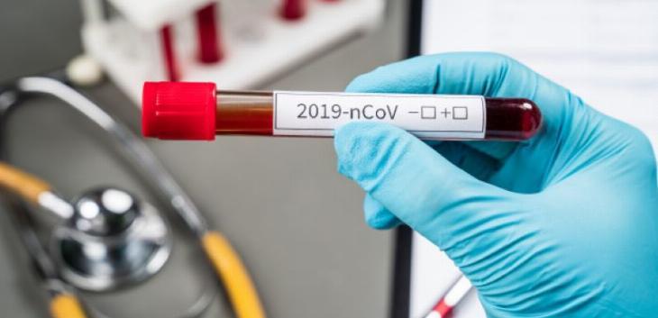 Uskoro u Srbiji dve nove regionalne laboratorije za testiranje na covid 19